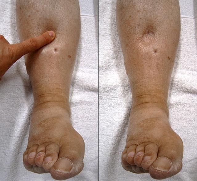 svullna ben efter förlossning