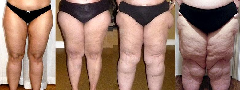 Svullna ben kan vara en okänd sjukdom